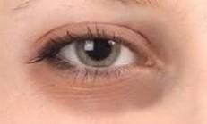 Göz altı morluklarının nedenleri ve doğal tedavi yöntemleri