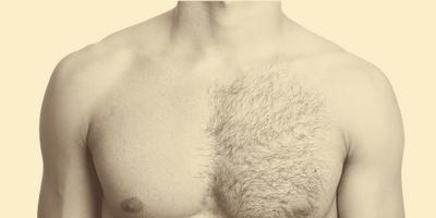 erkek-lazer-epilasyon-bolgeleri