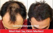 Med Hair Saç Ekimi Merkezi Nasıl?