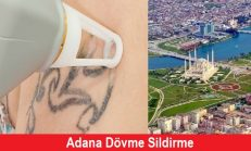 Adana Dövme Sildirme Fiyatları