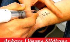 Ankara Lazerle Dövme Sildirme