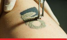 Artvin Dövme Sildirme Fiyatı