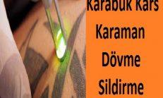 Karabük Karaman Kars Dövme Sildirme