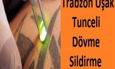 Trabzon Tunceli Uşak Dövme Sildirme
