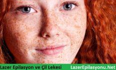 Lazer Epilasyon Sonrası Tatil ve Güneşlenme İpek Hanım