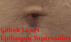 Göbek Lazer Epilasyon Yaptıranlar Yorumlar