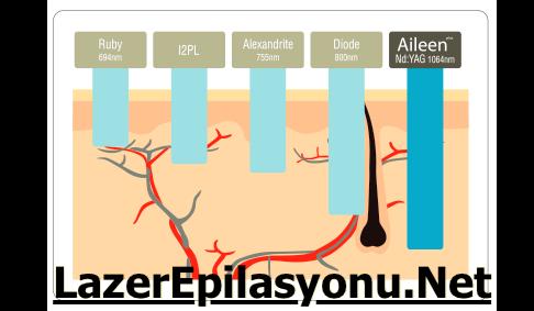 Aileen Pulse Nd:Yag Lazer Epilasyon Cihazı Nasıl? Kullananlar Yorumlar