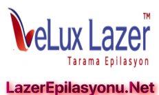 Velux Tarama Lazer Cihazı Nasıl Kullananlar Yorumları